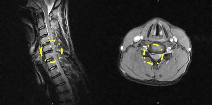 MRI画像その3