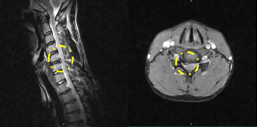 MRI画像その2