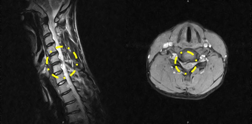 MRI画像その1